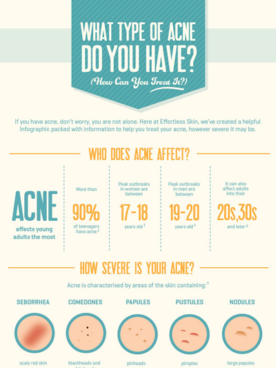 Infographic showing types of acne