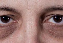 a man with dark circles