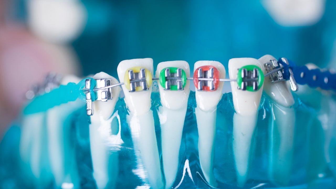 Dental teeth straightening
